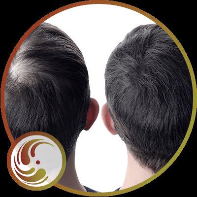 Medical Hair Regeneration