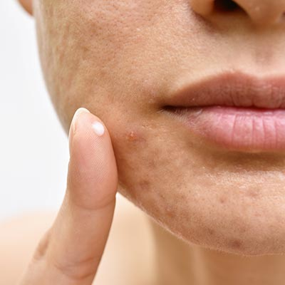 Acne Treatment in Orange, CA