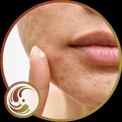 Acne Treatment in Orange, CA
